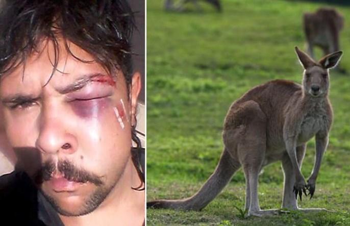 Kengur pretukao mladića koji ga je pokušao ubiti (FOTO)