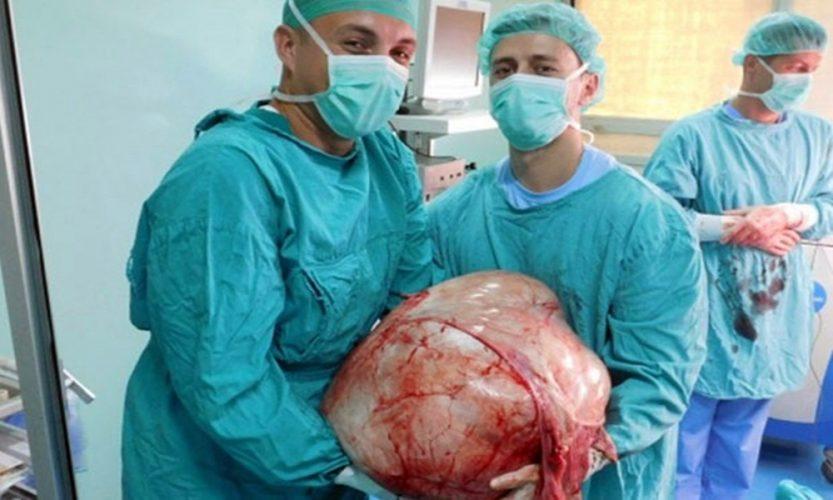 U banjalučkoj bolnici pacijentkinji odstranjen tumor težak 30 kilograma